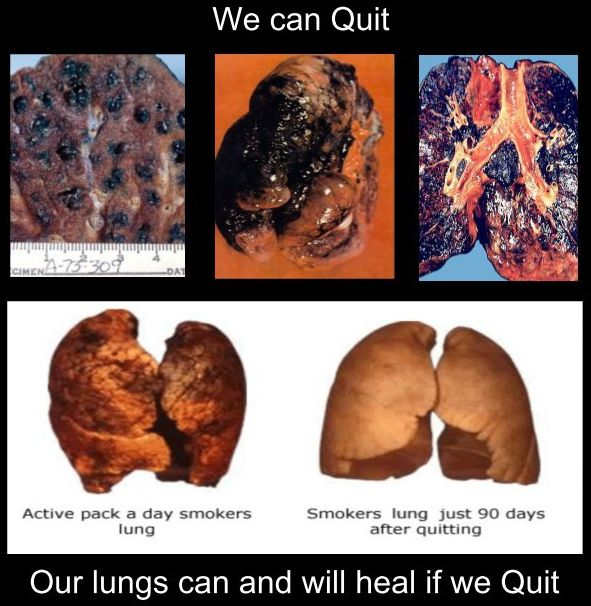 smoking-diseased-lungs524bd2f9a3d00.jpg